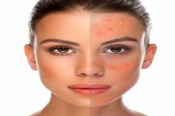 وقتی آلودگی هوا پوست و مو را نابود میکند!
