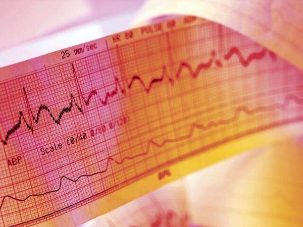 بیماری های قلبی - عروقی اولین علت مرگ در دنیا و ایران