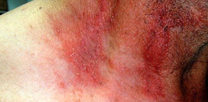 حشرهای موذی که بلای وحشتناکی بر سر پوستتان میآورد + تصاویر