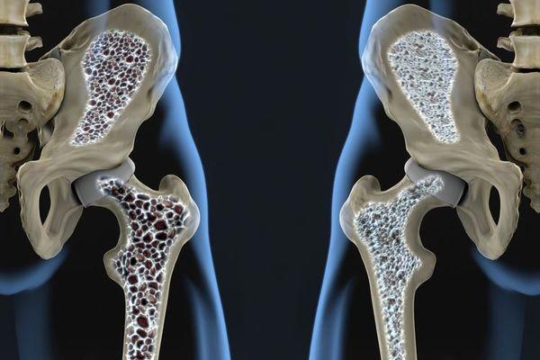کدام بیماری بیشتر از سرطان انسان را میکشد؟