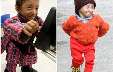 کوتاهترین مرد جهان درگذشت +عکس