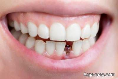 با عوارض ایمپلنت دندان آشنا شوید