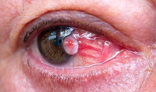 این علائم و نشانه ها خبر از سرطان چشم  می دهند