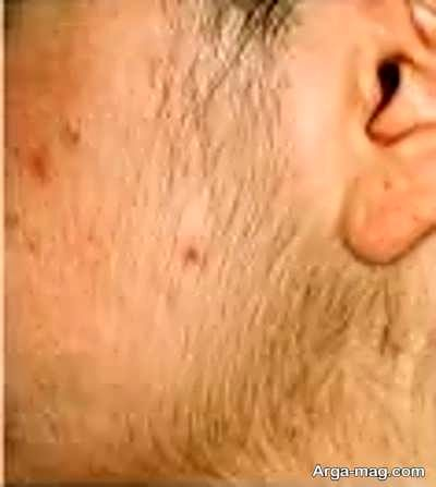 رشد موهای زائد با مصرف گردن و بال مرغ