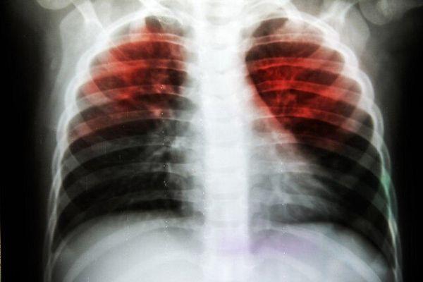 کشف راهی نوین برای مبارزه با بیماری سل