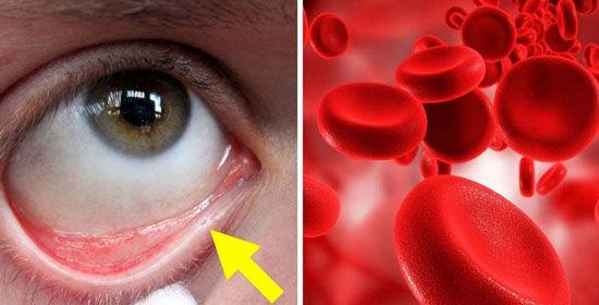 چرا کم خونی دارم؟