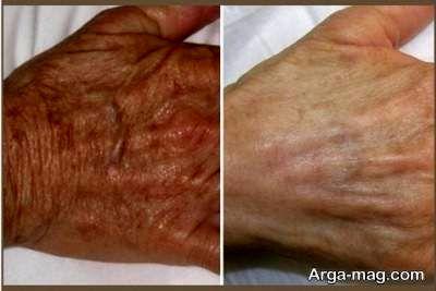 روش های جلوگیری از پیر پوست دست
