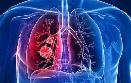 تنگی نفس و سرفه علائم سرطان ریه است؟