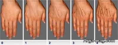 روند جوانسازی پوست درد