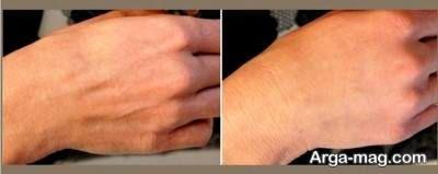 روش های طبیعی جلوگیری از پیر شدن پوست دست