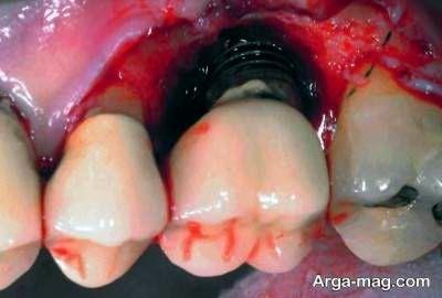 عوارض اسمپلنت دندان در کوتاه مدت
