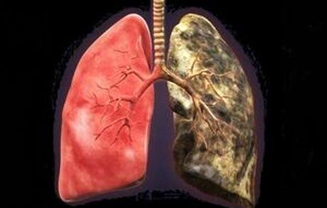 ۵ روش برای سم زدایی از ریه افراد سیگاری