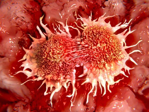 فوبیای سرطان؛ از وحشت تا واقعیت