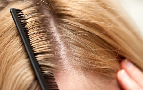 چرا موهایمان شوره میزند؟