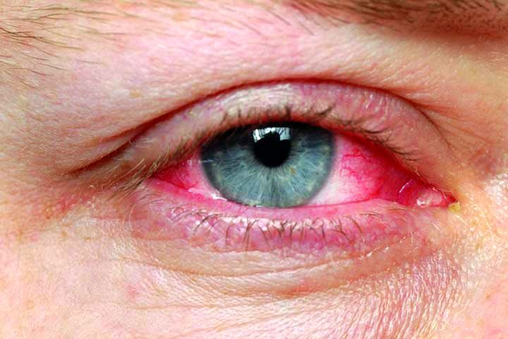 قرمزی چشم در اثر ورم ملتحمه