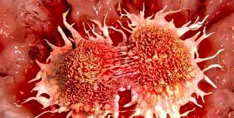 چه زنانی بیشتر در معرض سرطان هستند + عکس
