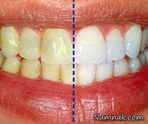 راه هایی ساده برای سفید کردن دندان در خانه + از زغال تا پوست موز